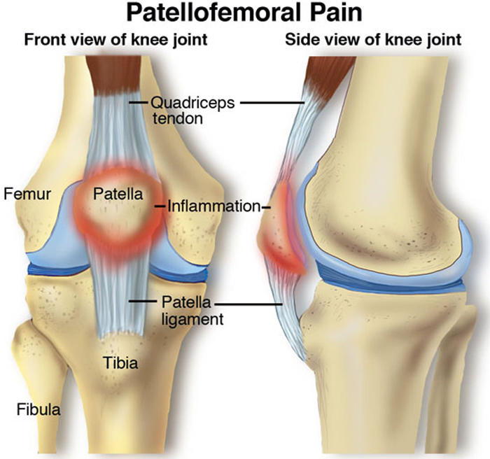 Patellofemoral pain syndrome is a broad term used to describe pain in the front of the knee and around the patella, or kneecap.