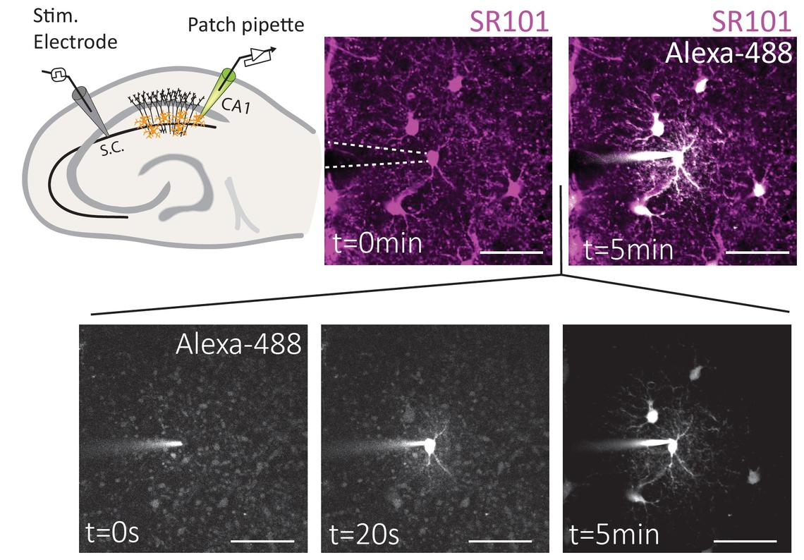 Images captured by a highly specialized imaging process called two-photon fluorescence show that stress reduces the movement of energy molecules through the astrocyte network.
