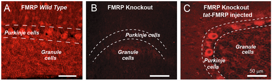 Extensive FMRP expression in normal brain (A) is missing in FMRP knockout mice (B) but restored 1 hr after tat-FMRP injection (C).
