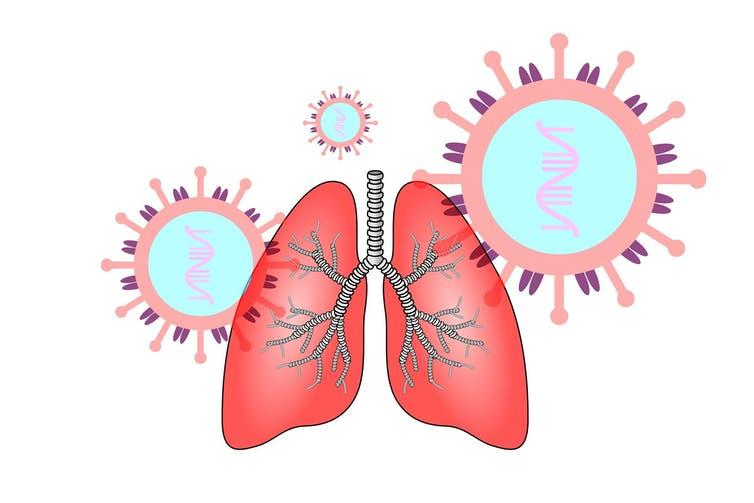 Coronavirus causes respiratory infections