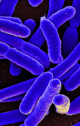 "Resistance to antibiotics is on the rise worldwide because of the overuse and misuse of medications, which can also lead to other health issues like drug toxicity or complications. ""Microbe"" by NIAID via Foter.com is licensed under CC by 2.0."