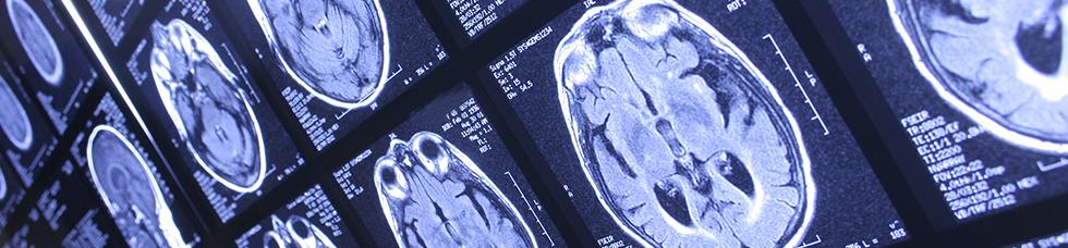Brain and Mental Health